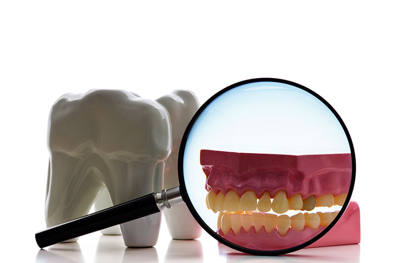 Root Canal in Simi Valley